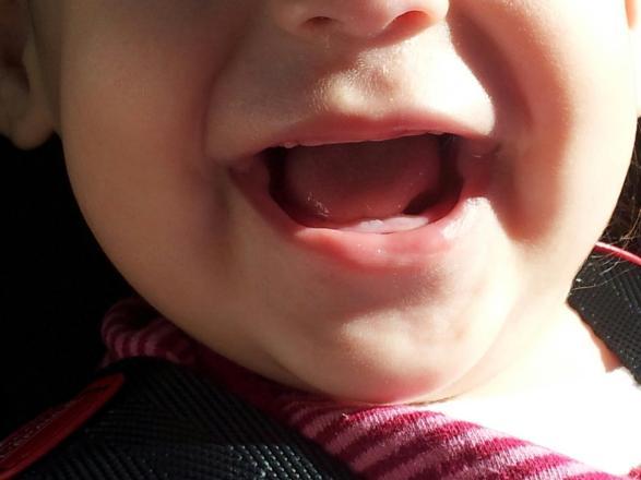 toothy delight SmadarHalperinEpshtein